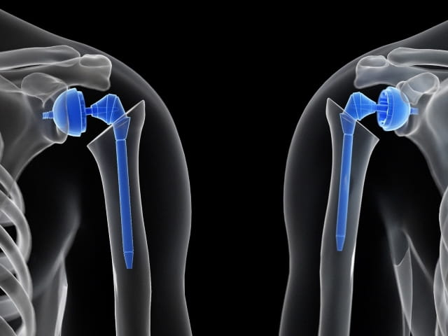 Preventing Glenoid Component Failure in Total Shoulder Replacement